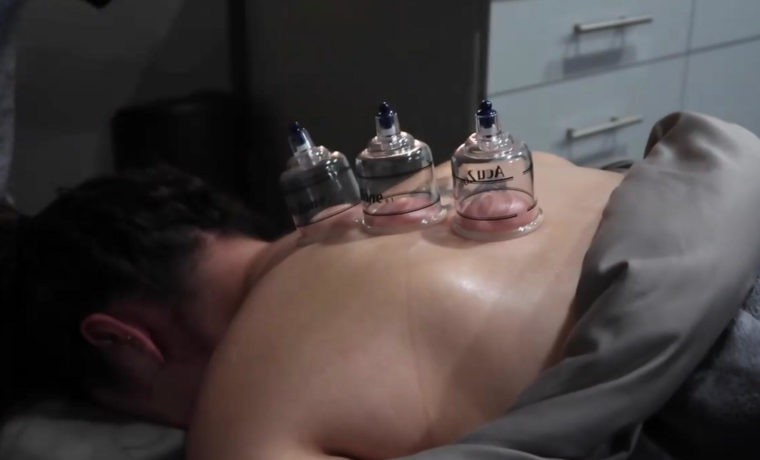 Jess cupping